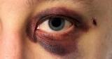 Травмы глаз: причины и лечение. Виды травм глаза