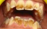 Кофейные пятна на зубах: причины и способы устранения