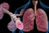 Медицина. Сестринский уход при бронхиальной астме