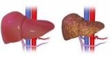 Первичный билиарный цирроз печени: причины, симптомы, диагностика и лечение
